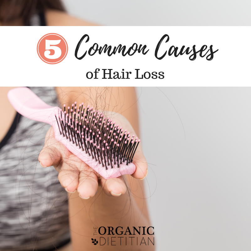 5 Common Causes of Hair Loss 1